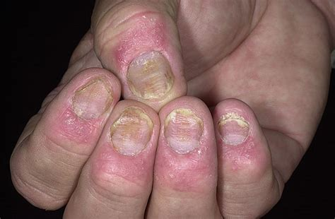 what causes psoriasis 2017 nail psoriasis medical treatment nail psoriasis prevention of psoriasis of nails