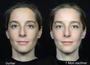 fraxel vorher nachher pigmentflecken dauerhaft entfernen dr g 252 nther d 252 sseldorf
