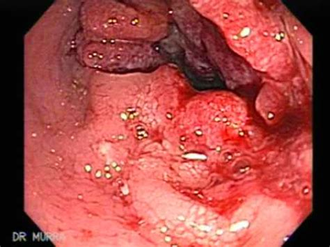tumor bleeding image gallery hemorrhoids bleeding