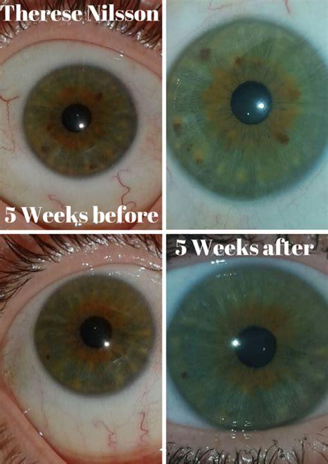 Iridology Detox by Iridology Eye Color Change Iriscope Iridology