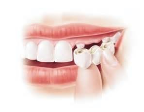 ciment dentaire haute adh 233 rence pour recoller une couronne