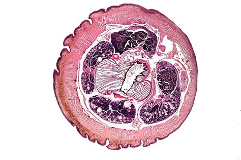earthworm transverse section photograph by dr keith wheeler