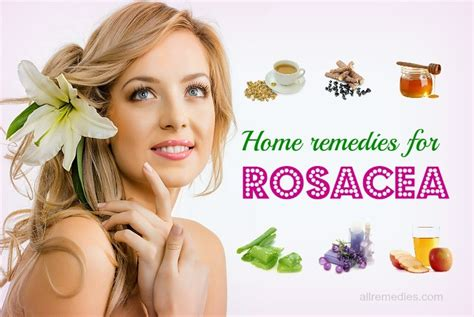 top 21 home remedies for rosacea treatment on