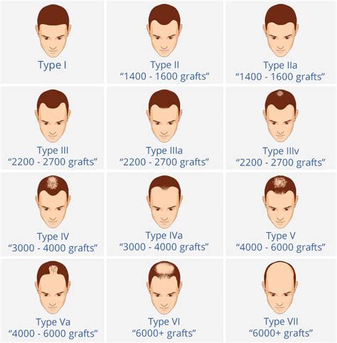 types of hairlines male pattern hair loss hair loss in men