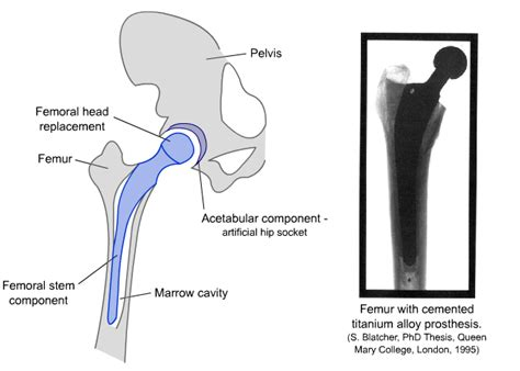 diagram of the hip total hip diagram total free engine image for user