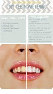 homemade teeth whitening alldaychic