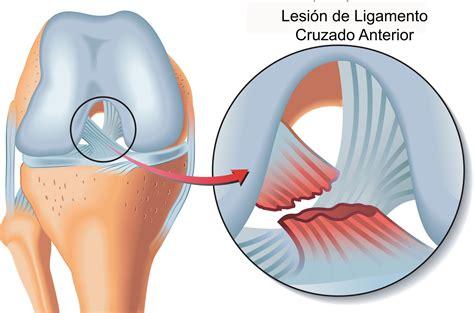 lesione menisco interno lesi 243 n en meniscos m 233 dico quiropr 225 ctico