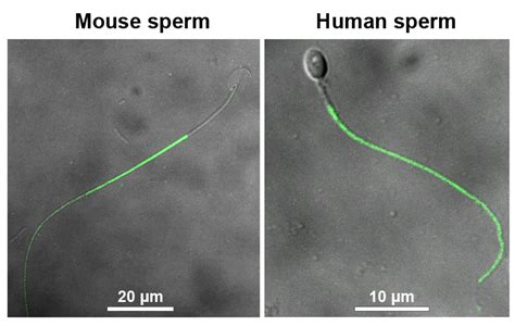 stress pattern sperm adalah discovery of a water channel essential for postcopulatory