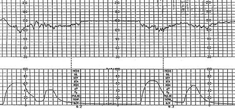 pattern of heart contraction interpretation of the electronic fetal heart rate during