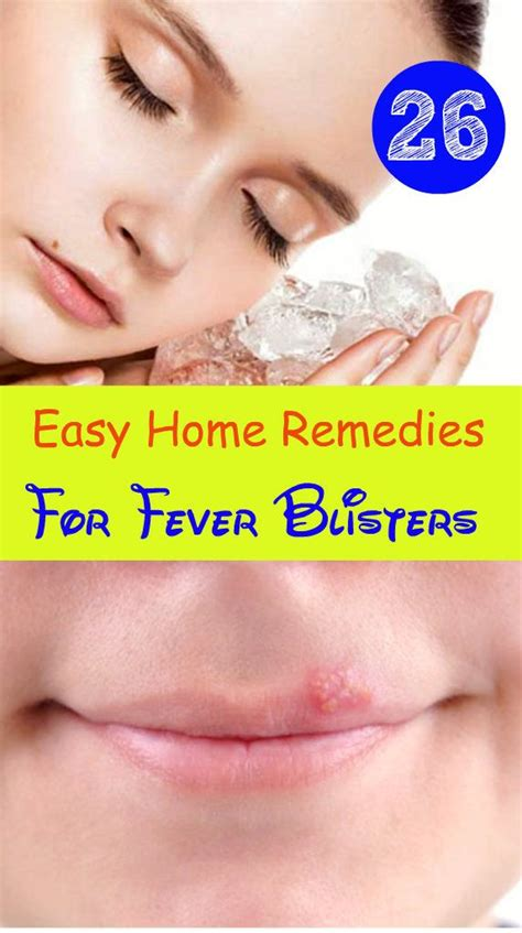 7 best images about fever blister remedy and releif on
