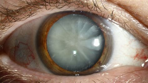 Cortical Blindness Treatment No More Surgery A New Eye Drop Dissolves Cataracts
