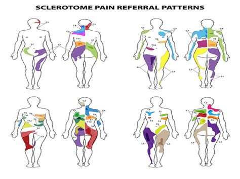 skema dermatom  sklerotom artikel fisioterapi