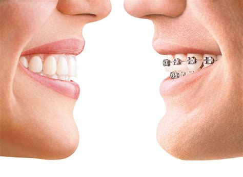 Cabinet Garches by Invisalign Cabinet Orthodontie Garches