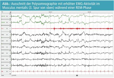 zuckungen im schlaf schlafst 246 rungen bei patientinnen mit zerebell 228 rer ataxie