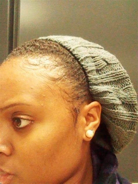 my edges are really thin what natural styles can i wear edges are slowly thinning next step curlynikki forums