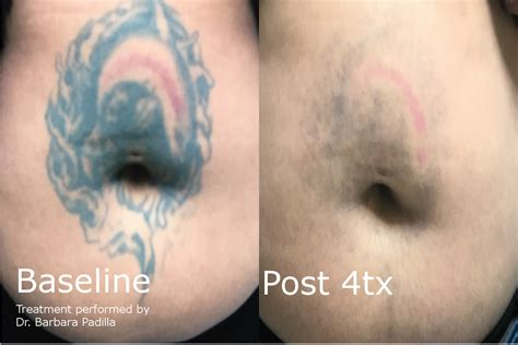 laser tattoo removal results laser removal enlighten and most