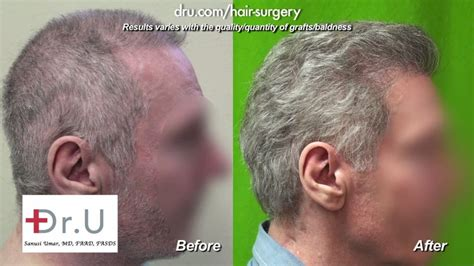fienes hair transplant fienes hair transplant fienes hair transplant going