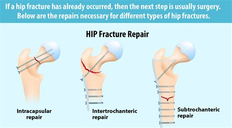 Section 25 From The Hip by Hip Fracture Elderly Www Pixshark Images Galleries