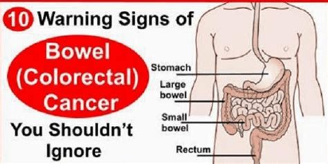 here s warning signs of bowel colorectal cancer you