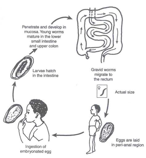 pinworm cycle diagram lesson 15 intestinal helminths wikieducator