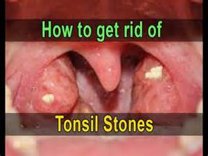how to get rid of tonsil stones at home how to get rid of tonsil stones tonsilloliths fast and