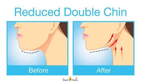double chin tuck sew get rid of double chin and neck fat with these exercises