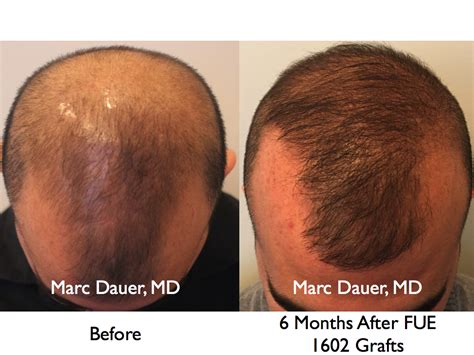 hair transplant month by month pictures fue hair transplant at 6 months hair transplant los