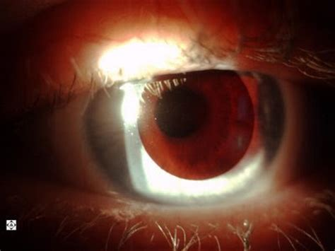 Contact Lenses For Color Blindness sonoran desert eye center contact lens for color blindness