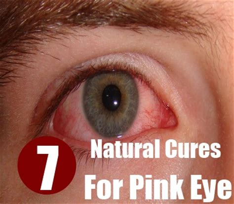 at home treatment for pink eye home remedies for pink