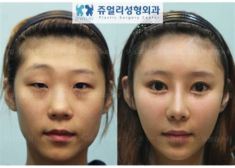 Korean Plastic Surgery Meme - korean plastic surgery before and after memes