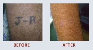 glasgow tattoo removal tattoo removal in glasgow