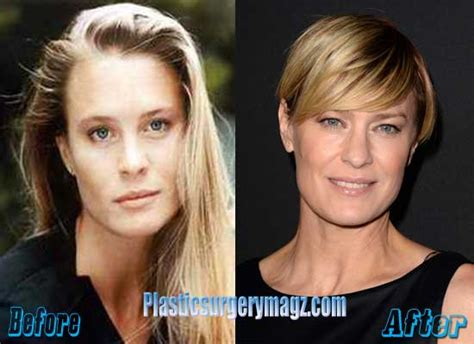 robin wright nose job robin wright plastic surgery before and after plastic