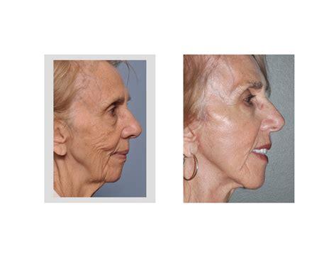 explore plastic surgery dr barry eppley arm lift explore plastic surgery dr barry eppley chin reduction