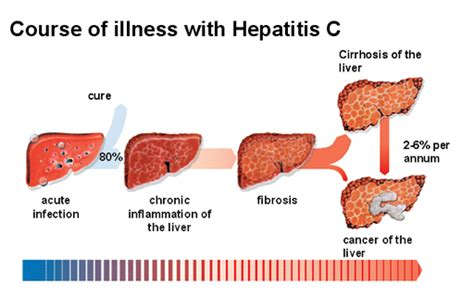 Detoxing Liver Heptiitis C by Symptoms Of Liver Damage From Painkillers