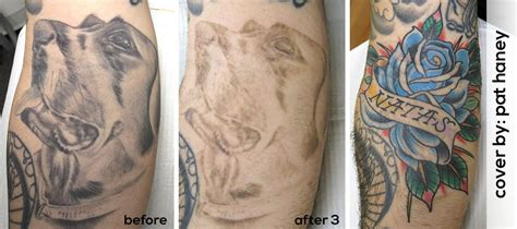 go tattoo removal go removal allentown pa laser removal