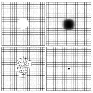 Color Blind Test Chart Age Related Macular Degeneration Amd Retina Group Of New