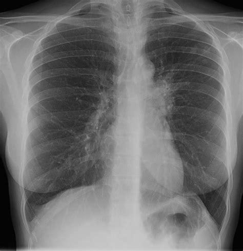 Obat Tbc Cordyceps Plus Capsule Green World 100 Asli obat tradisional tbc paru cordyceps plus capsule solusi