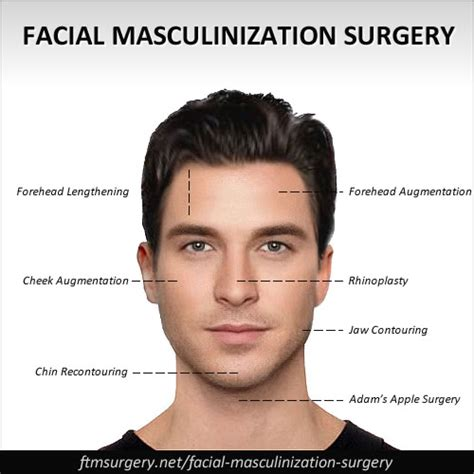facial masculinization surgery ftm pictures free download