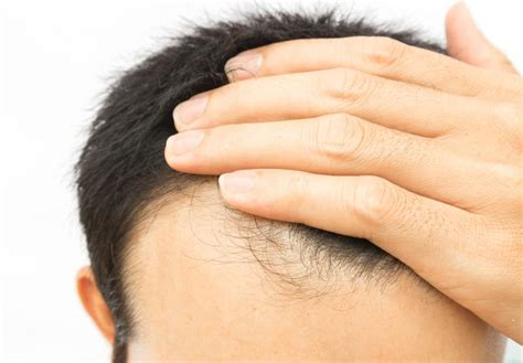 thin hair scalp hurting biotin for hair growth dosage and side effects