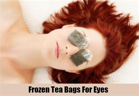 top 6 home remedies for bags remedies