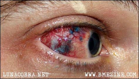 video tato bola mata ekstrim tato di bola mata berani