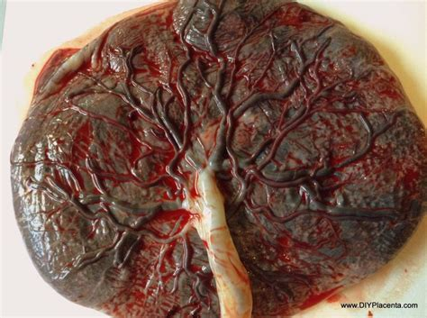 image gallery placenta