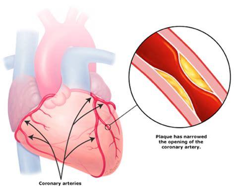Can You Cure Chd coronary artery disease cccma california