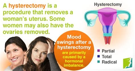 ms and mood swings 17 best images about mood swings 34 ms on pinterest