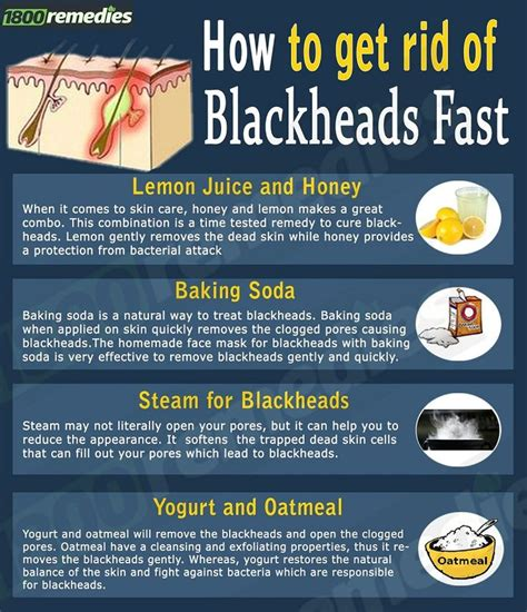 How To Get Rid Of Your Blackheads by How To Get Rid Of Blackheads Overnight