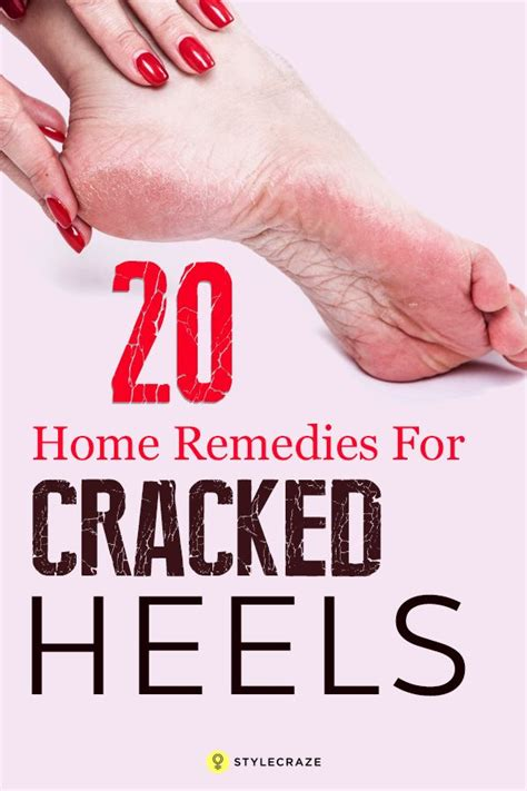 best 25 heels ideas on cracked