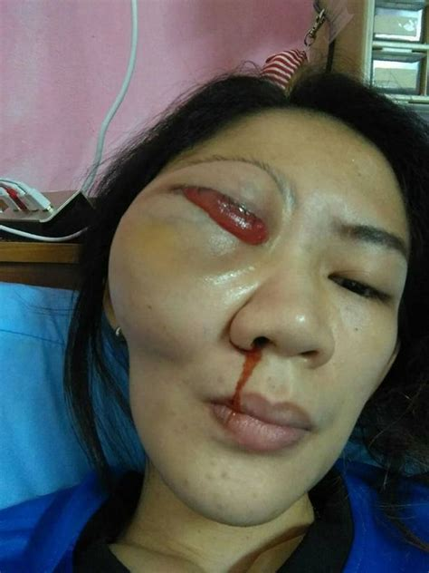 eye popped out shocking pictures show s eye popping out of due to