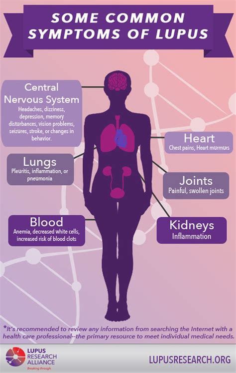 sle of research 1923 best with lupus ƹ ӝ ʒ images on lupus awareness fibromyalgia and