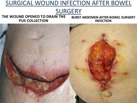 mrsa c section mrsa after c section staph infection pictures abscess