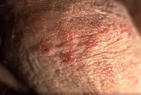 Herpes Shedding Symptoms by Sexually Transmitted Infections Definitive Diagnosis And